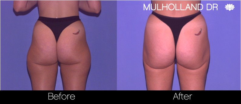 Vaser Liposuction - Before and After Gallery - Patient Photo 63