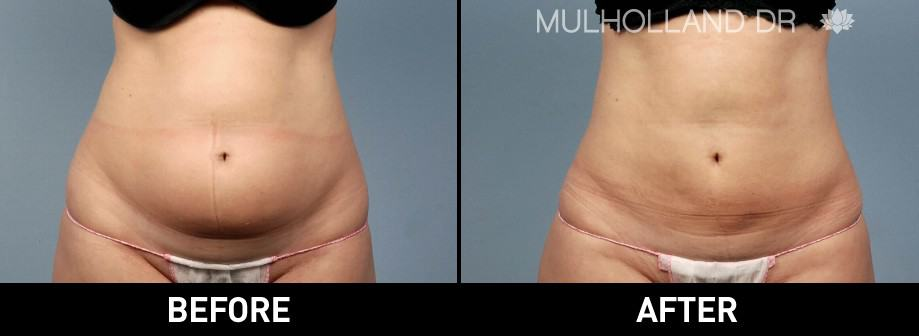 Vaser Liposuction - Before and After Gallery - Patient Photo 7