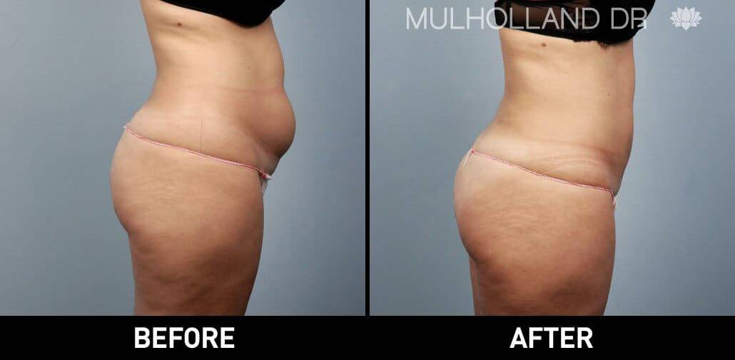 Vaser Liposuction - Before and After Gallery - Patient Photo 8