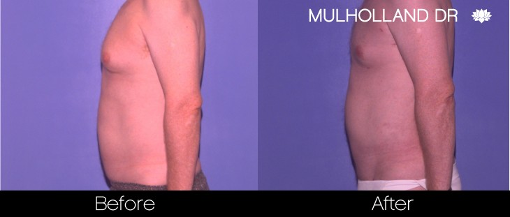 Vaser Liposuction - Before and After Gallery - Patient Photo 80