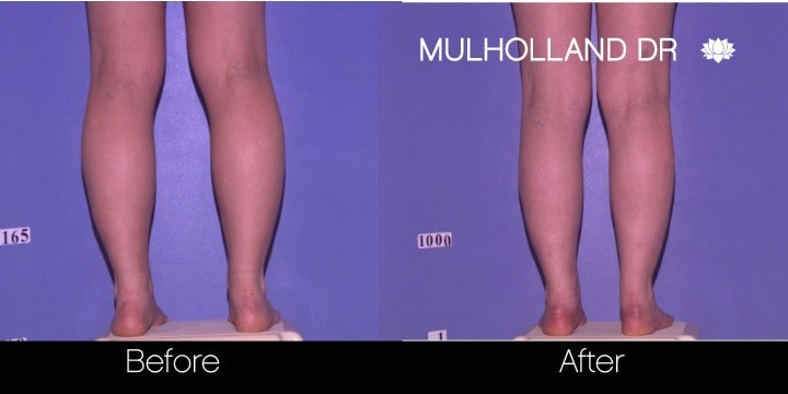 Vaser Liposuction - Before and After Gallery - Patient Photo 86