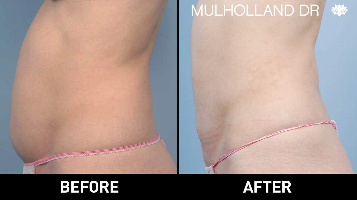 Vaser Liposuction - Before and After Gallery - Patient Photo 9