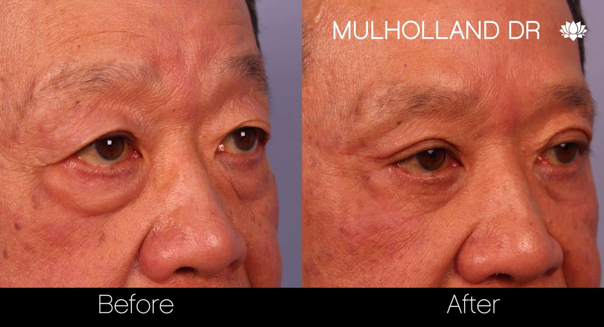 Male Blepharoplasty - Before and After Gallery – Photo 10