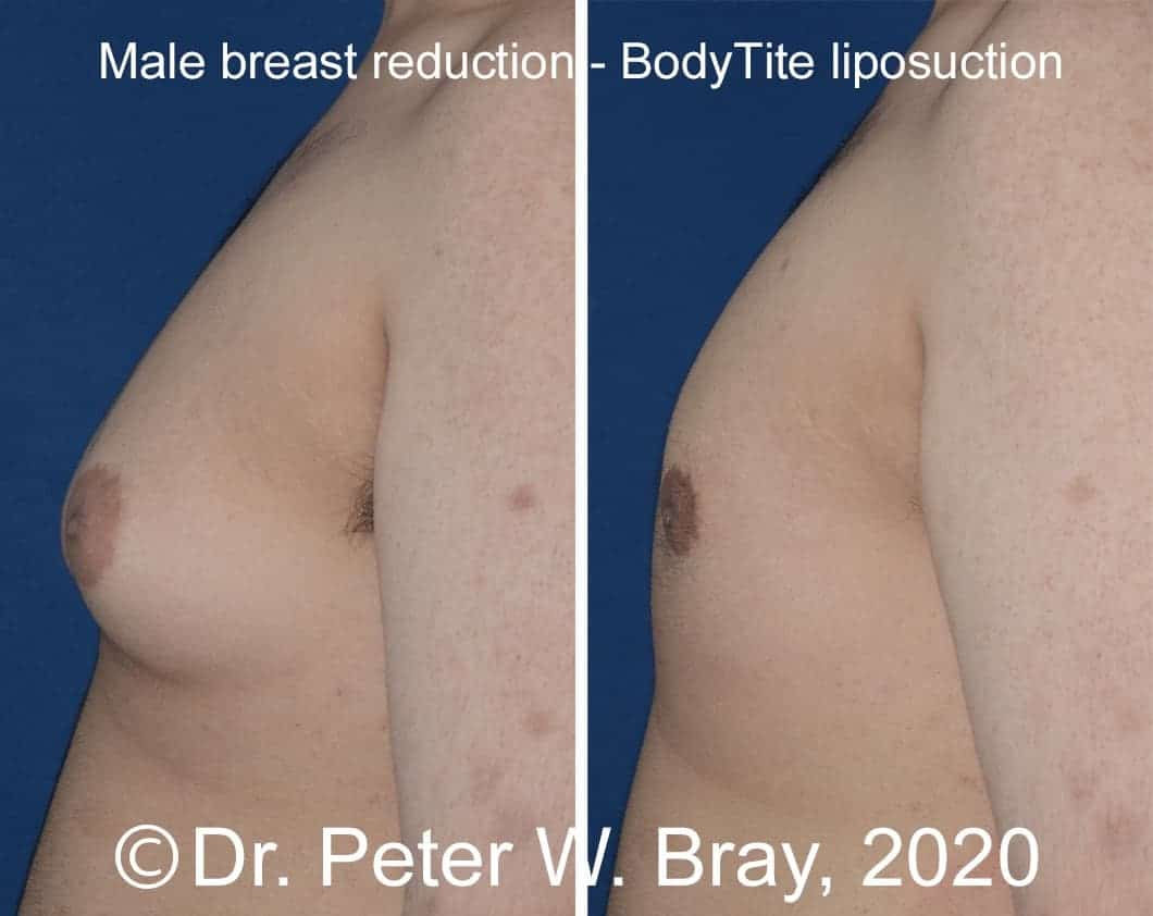 Male Breast Reduction - Before and After Gallery – Photo 10