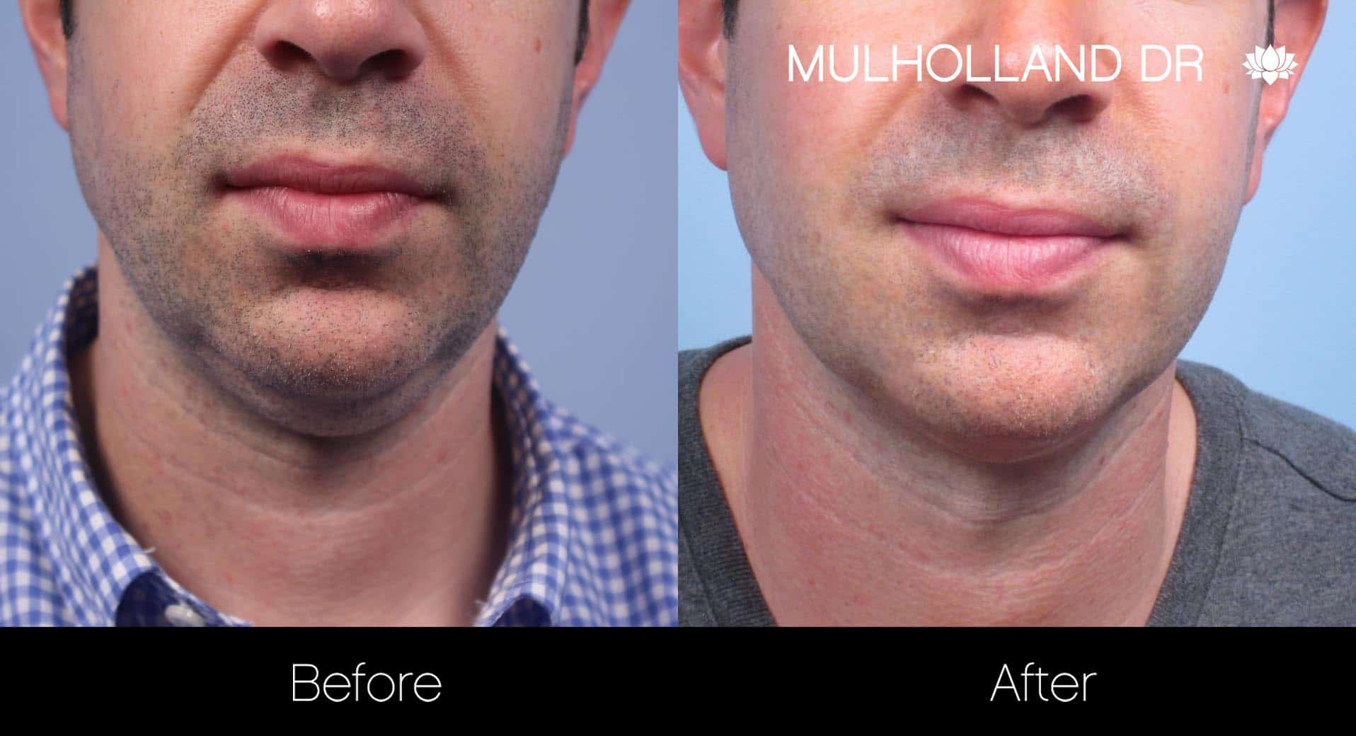 Male Double Chin - Before and After Gallery – Photo 10