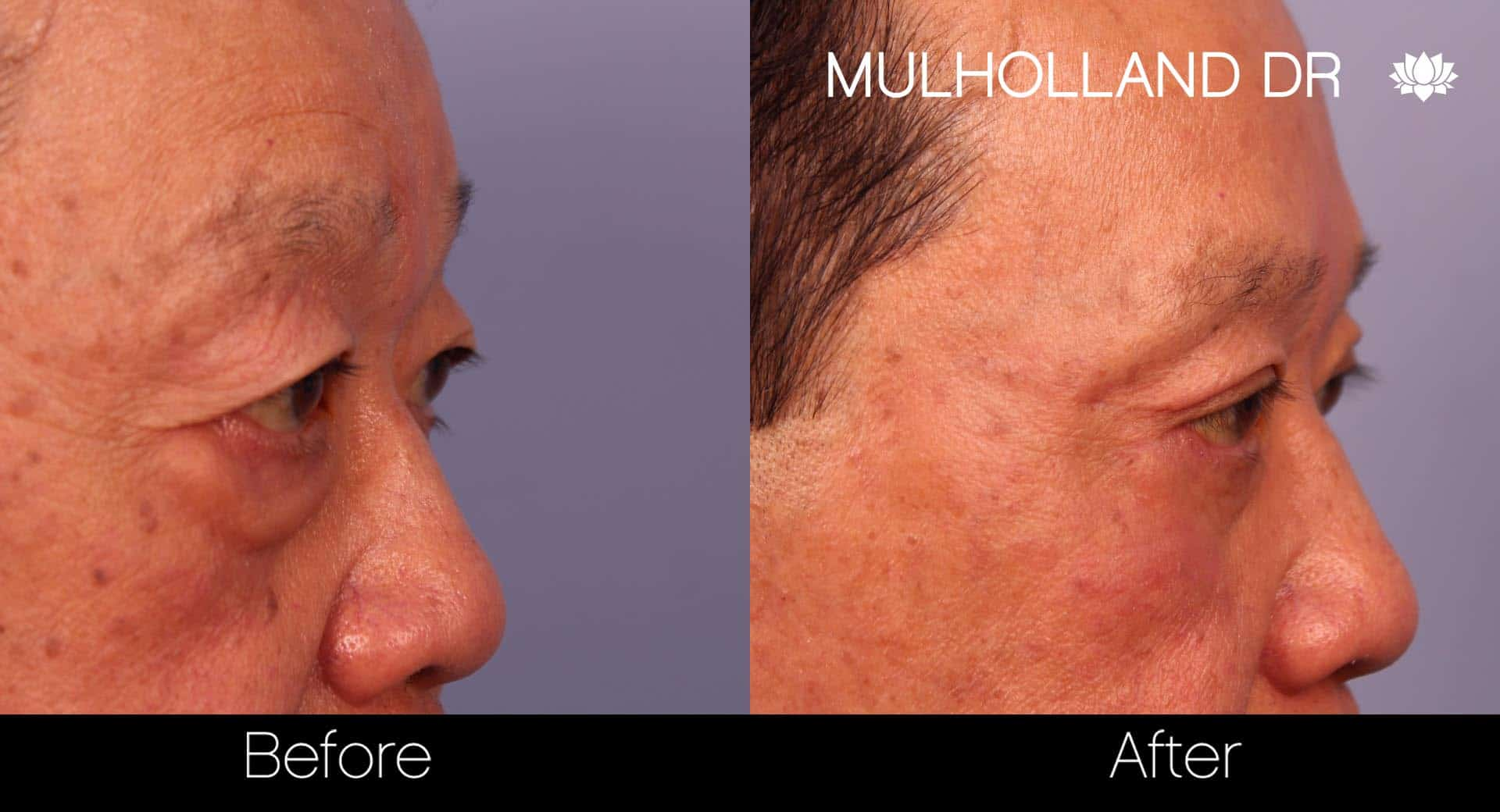 Male Blepharoplasty - Before and After Gallery – Photo 11