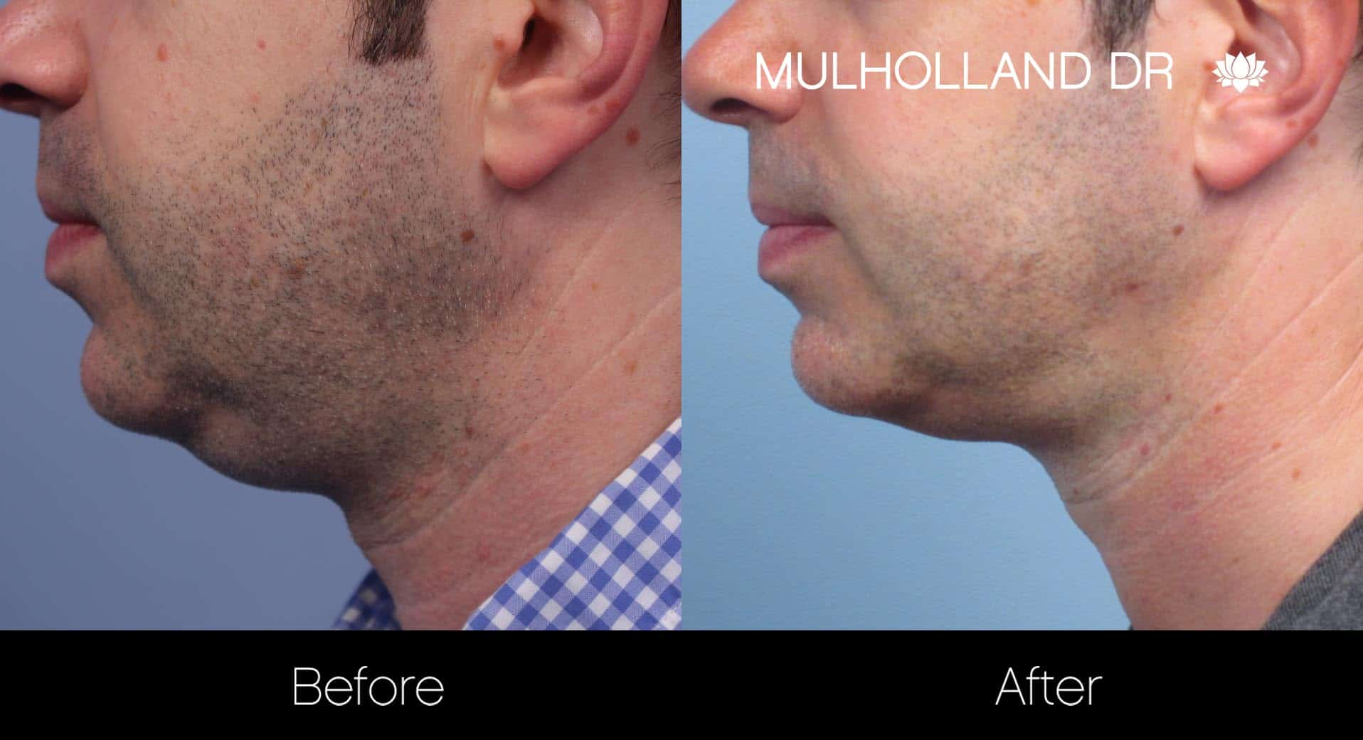 Male Double Chin - Before and After Gallery – Photo 12