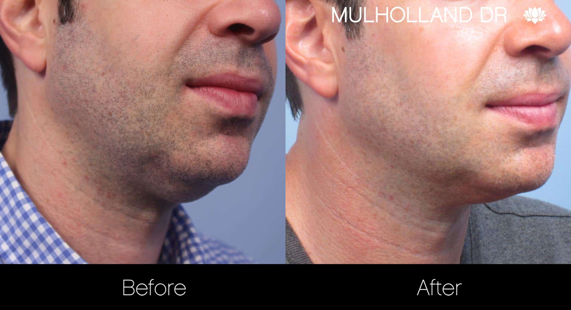 Male Double Chin - Before and After Gallery – Photo 13