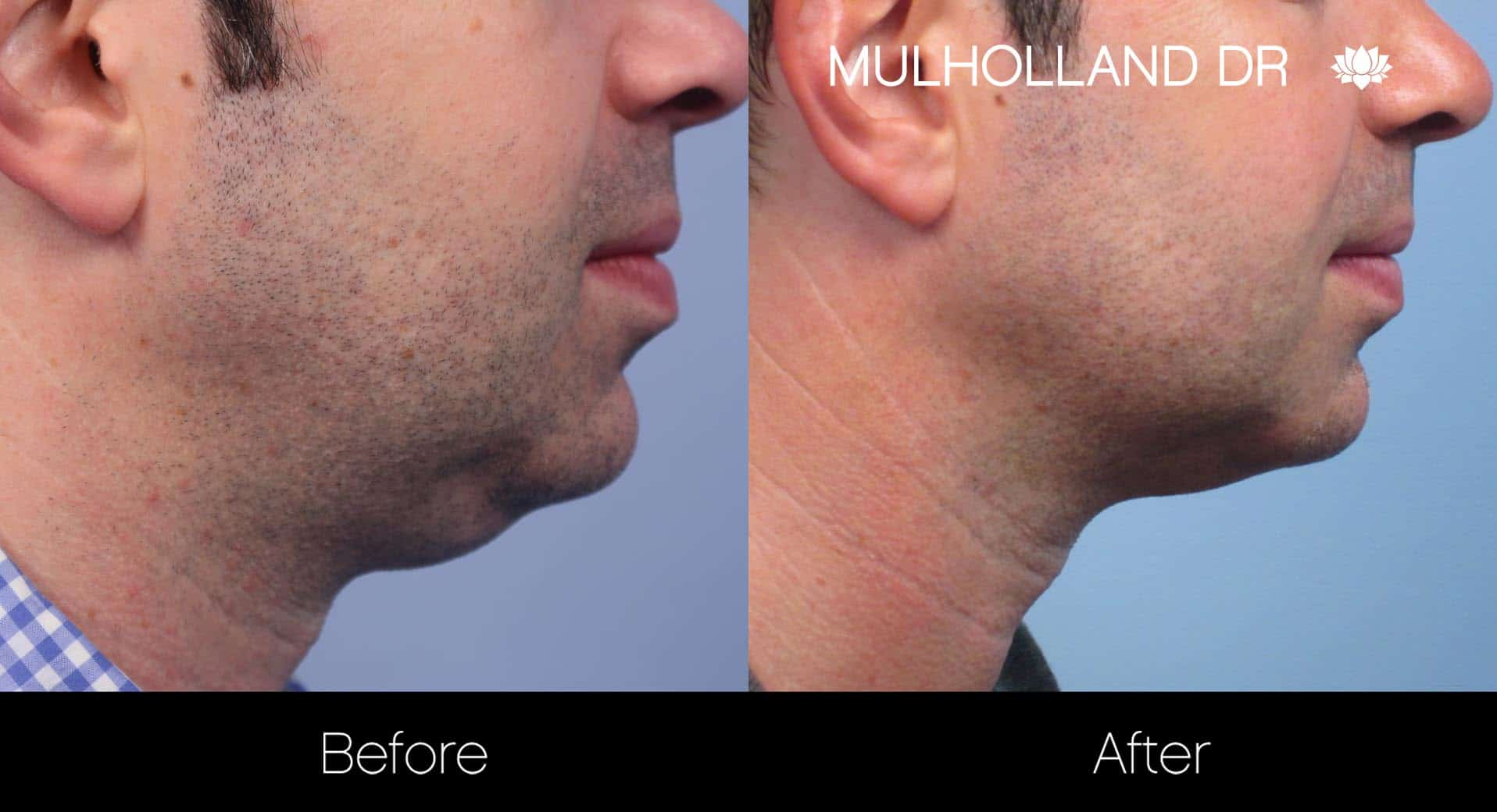 Male Double Chin - Before and After Gallery – Photo 14