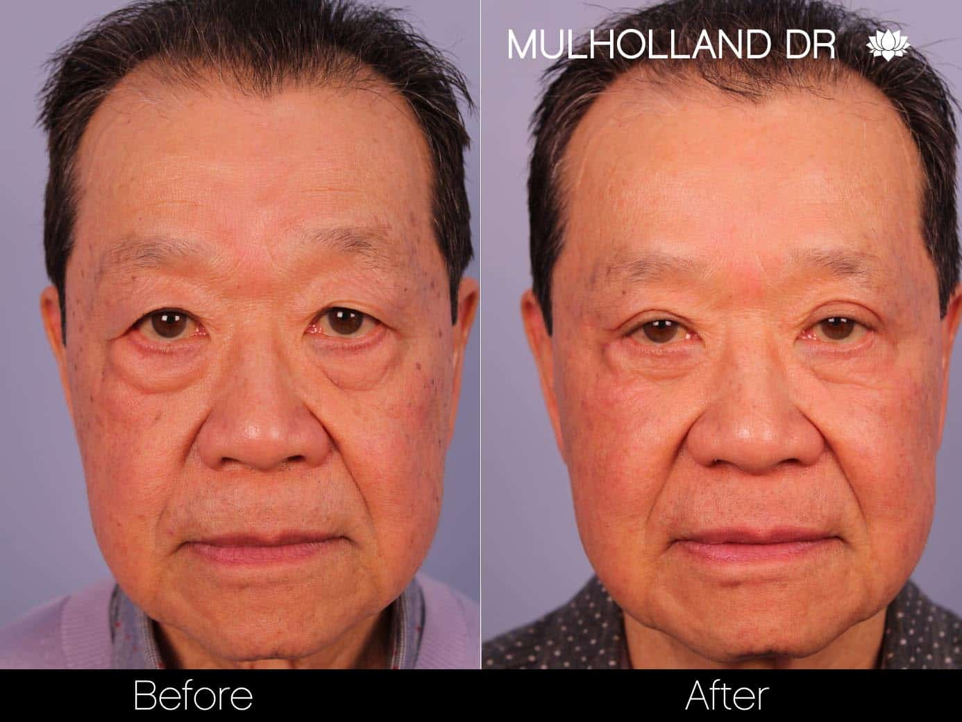 Male Blepharoplasty - Before and After Gallery – Photo 1