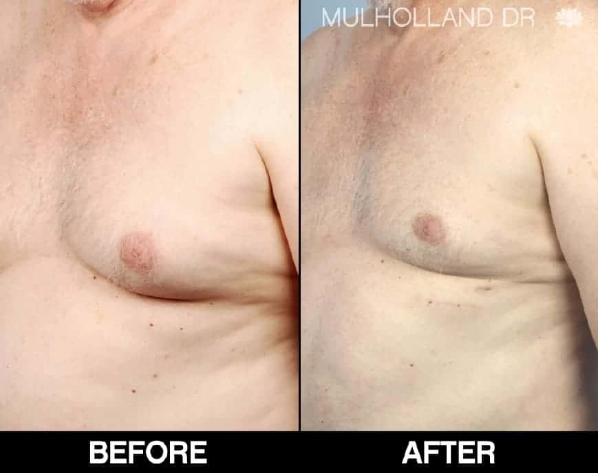 Male Breast Lift and Gyncomastia - Before and After Gallery – Photo 1
