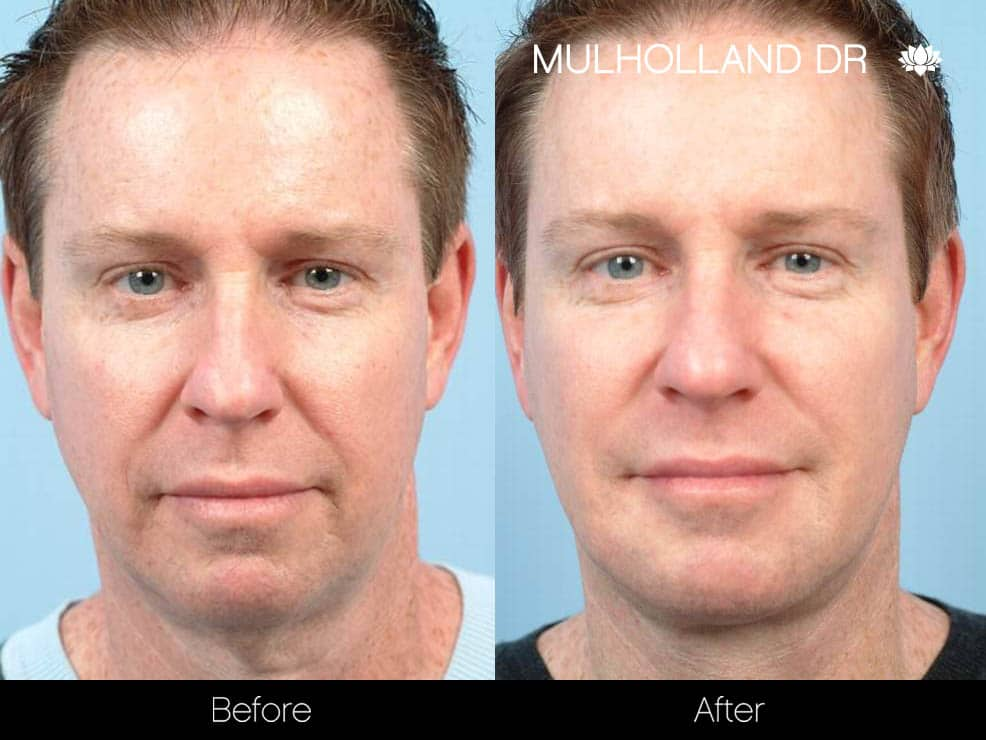 Male Double Chin - Before and After Gallery – Photo 1