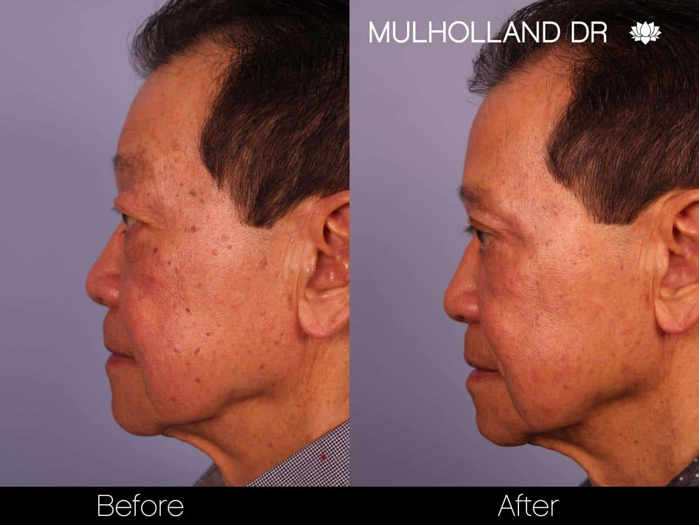 Male Blepharoplasty - Before and After Gallery – Photo 2