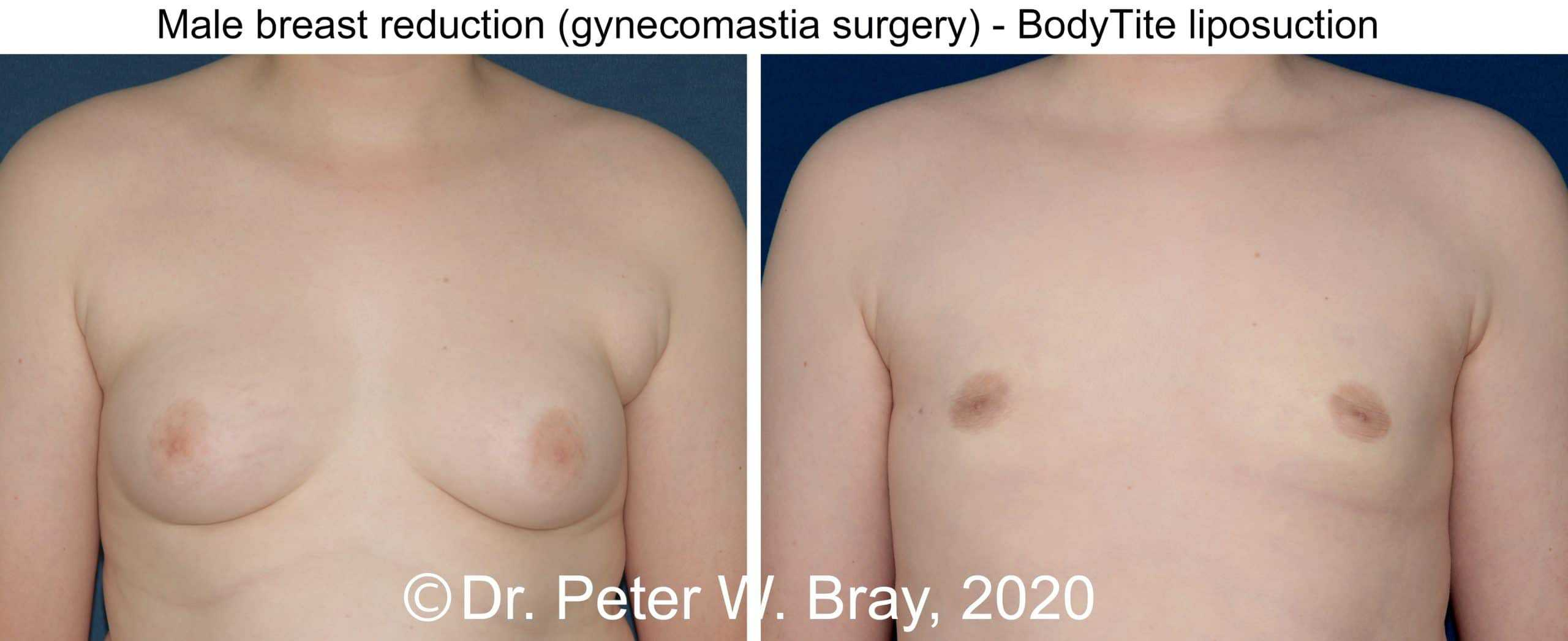 Male Breast Reduction - Before and After Gallery – Photo 2