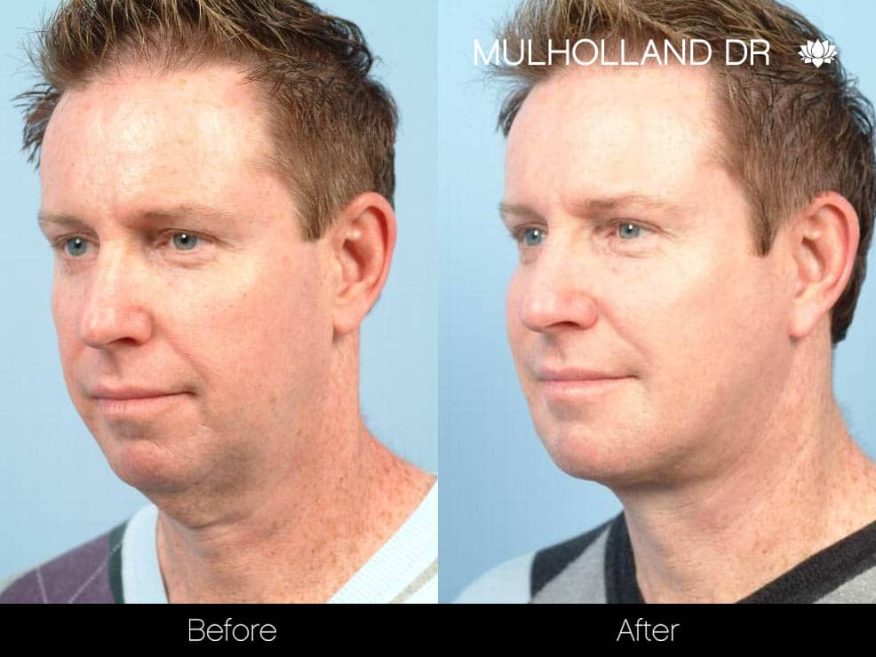 Male Double Chin - Before and After Gallery – Photo 2