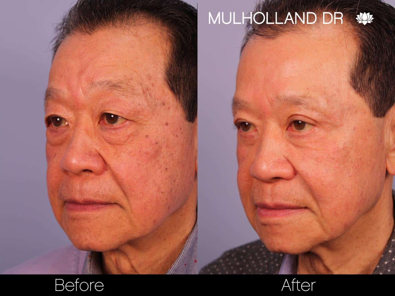 Male Blepharoplasty - Before and After Gallery – Photo 3