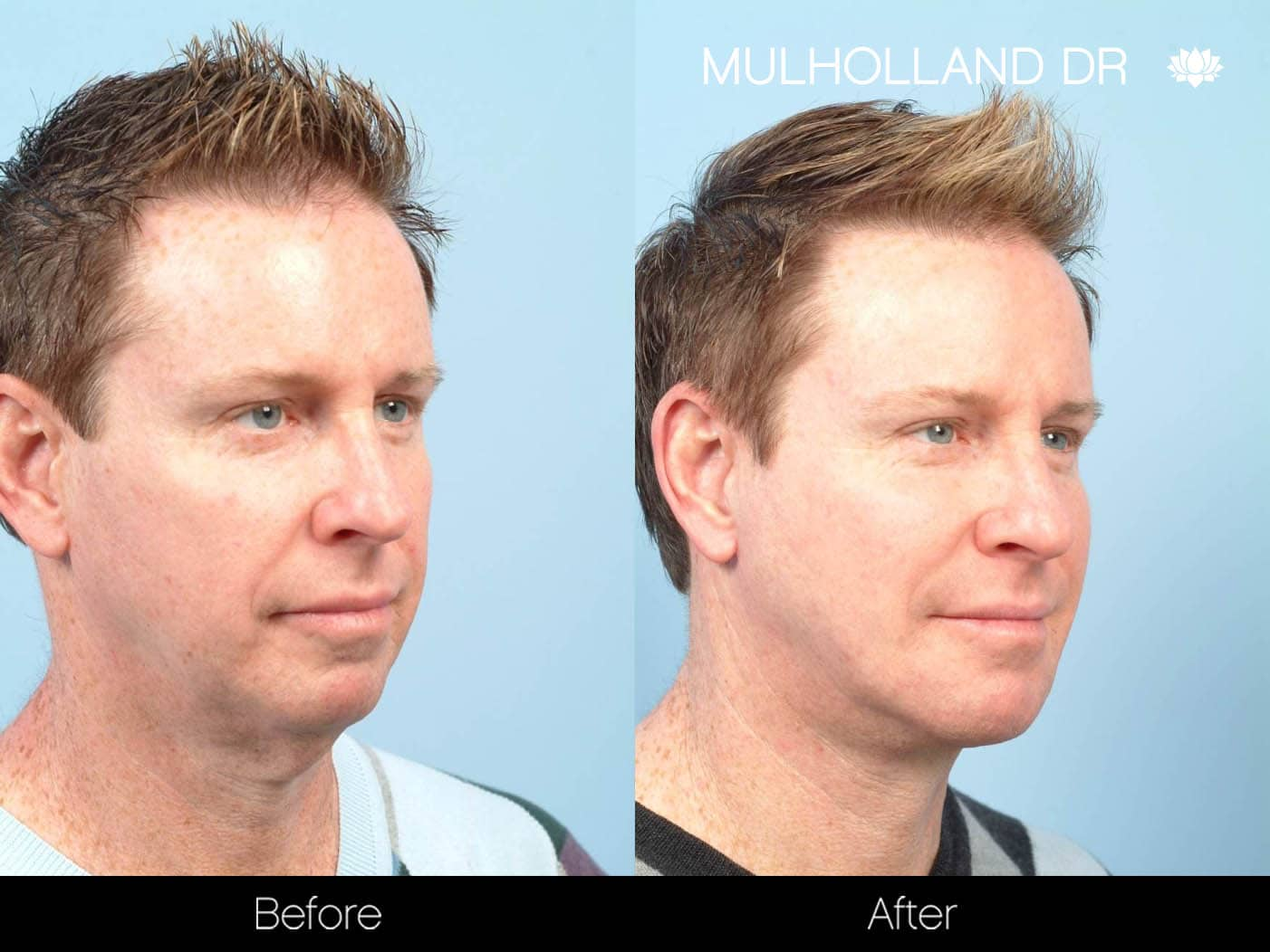 Male Double Chin - Before and After Gallery – Photo 3