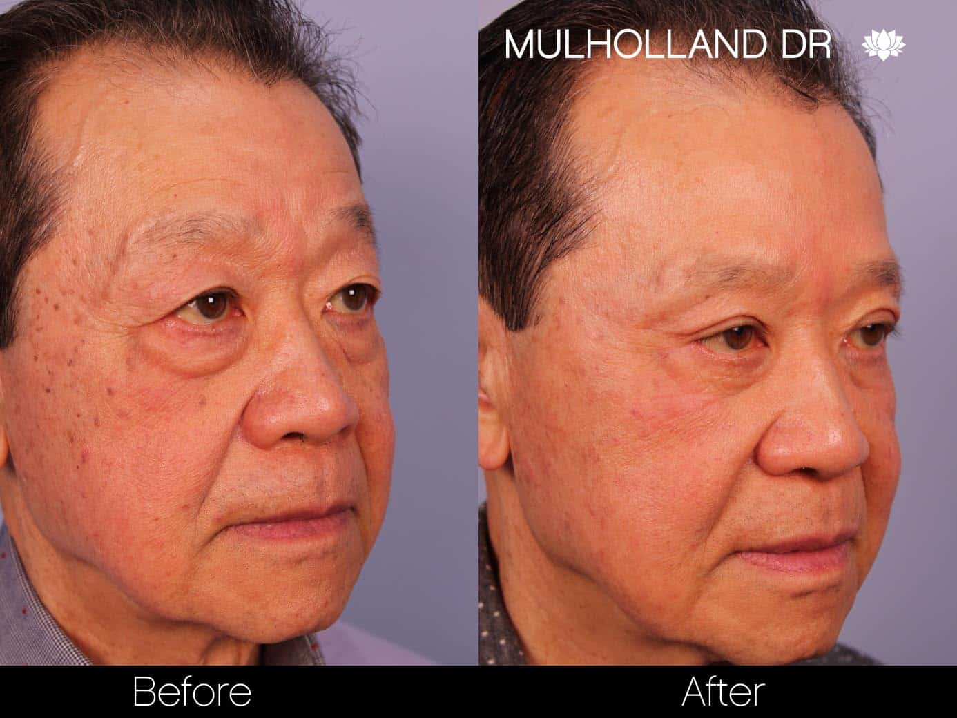 Male Blepharoplasty - Before and After Gallery – Photo 4