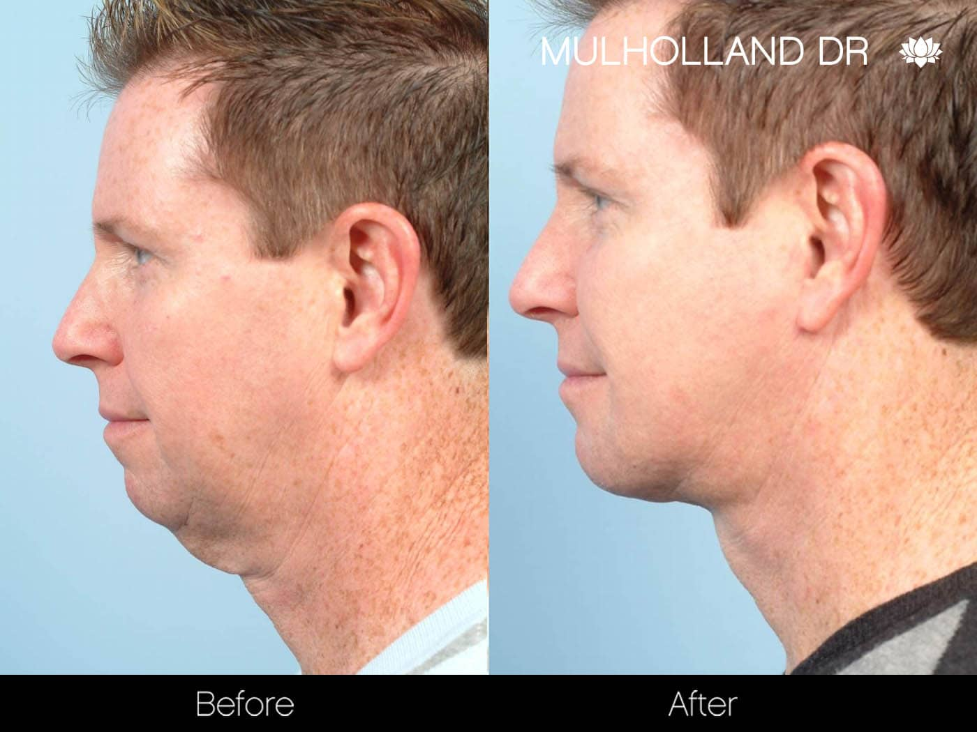 Male Double Chin - Before and After Gallery – Photo 4
