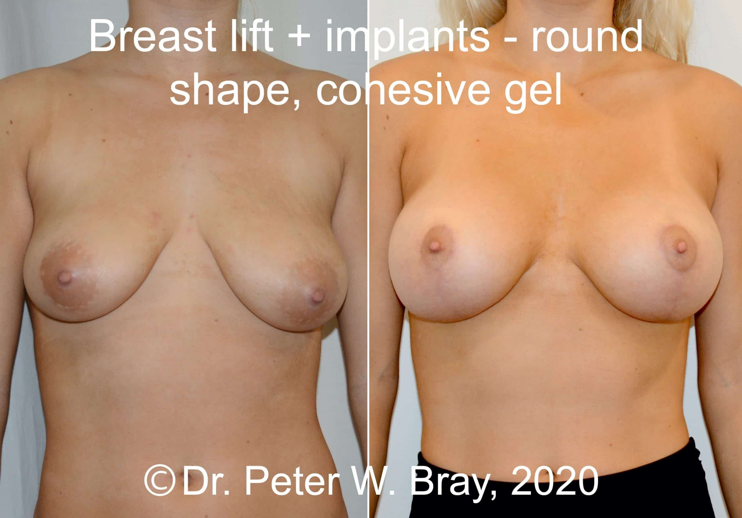Breast Lift - Before and After Gallery – Photo 5