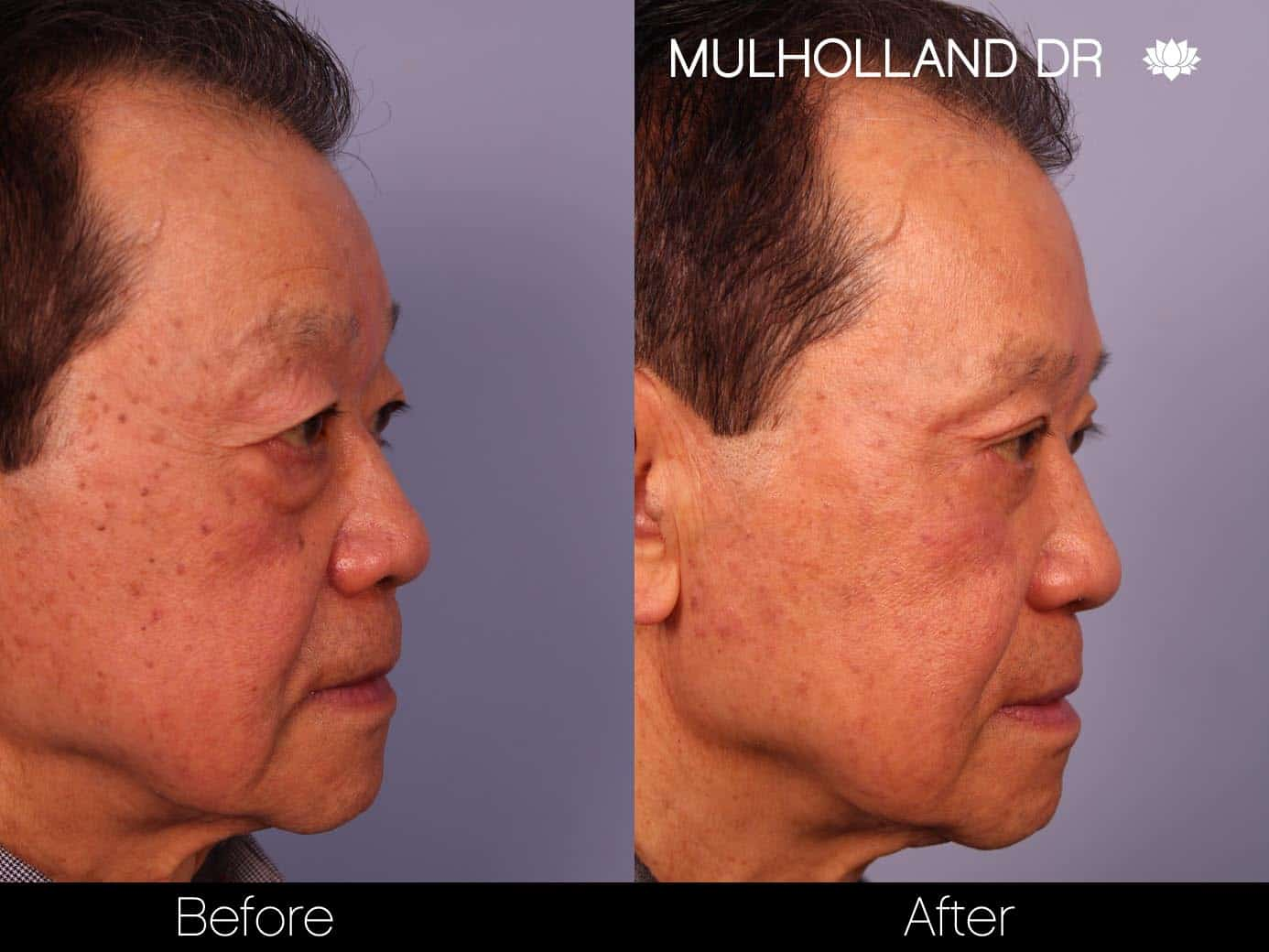 Male Blepharoplasty - Before and After Gallery – Photo 5