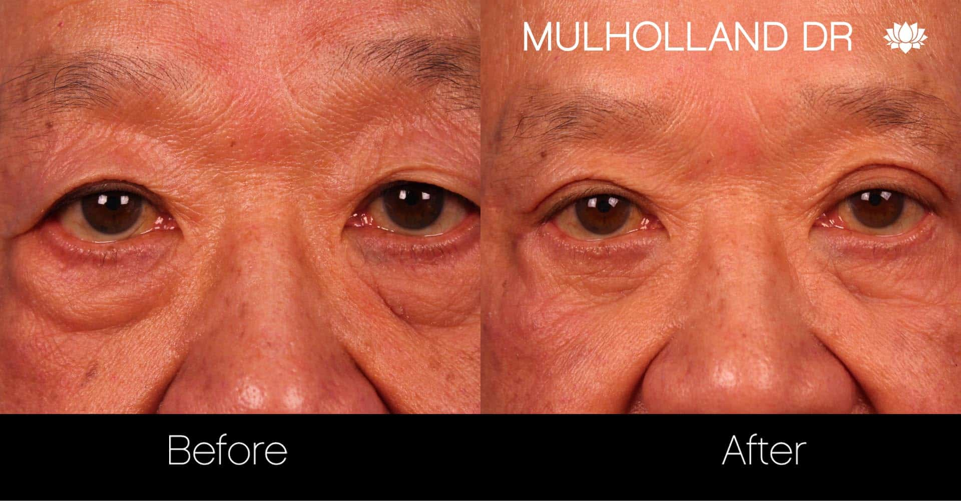 Male Blepharoplasty - Before and After Gallery – Photo 6