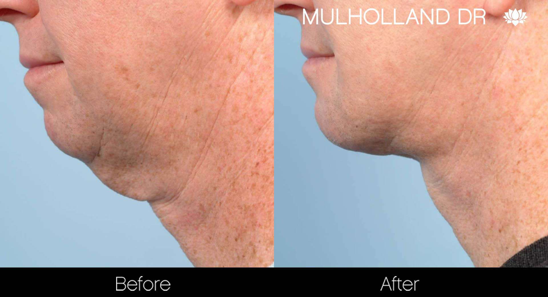 Male Double Chin - Before and After Gallery – Photo 6