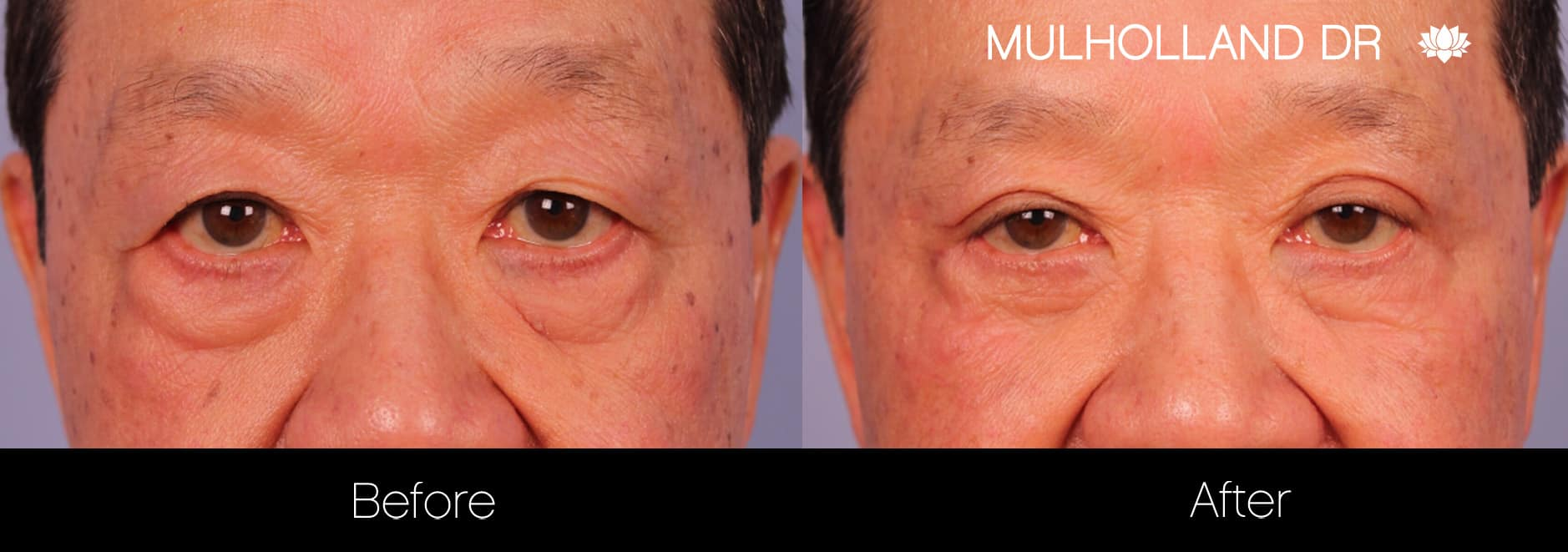 Male Blepharoplasty - Before and After Gallery – Photo 7