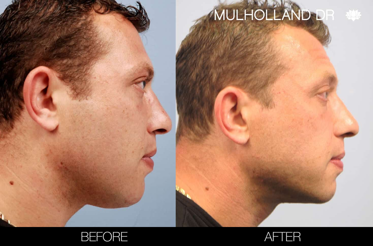 Male Double Chin - Before and After Gallery – Photo 7
