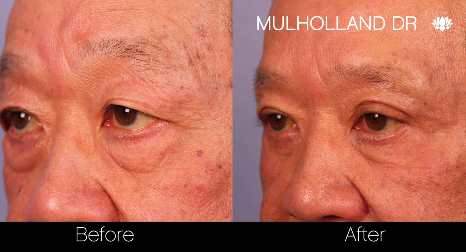 Male Blepharoplasty - Before and After Gallery – Photo 8