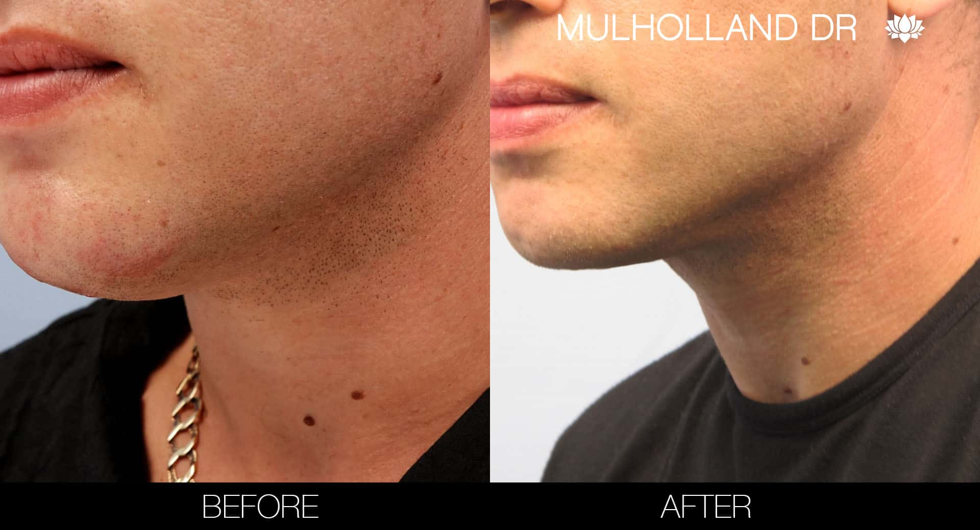 Male Double Chin - Before and After Gallery – Photo 8