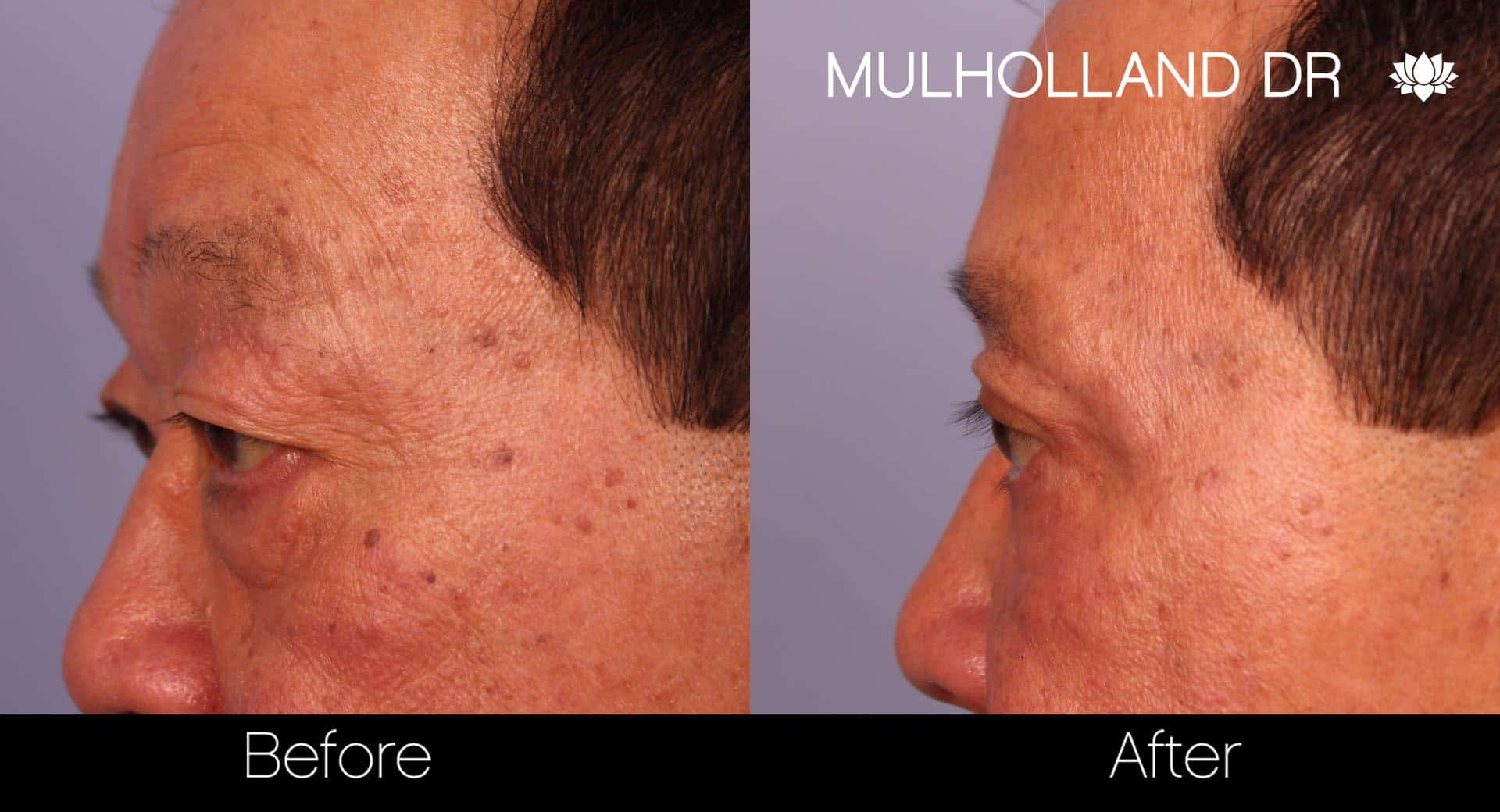 Male Blepharoplasty - Before and After Gallery – Photo 9