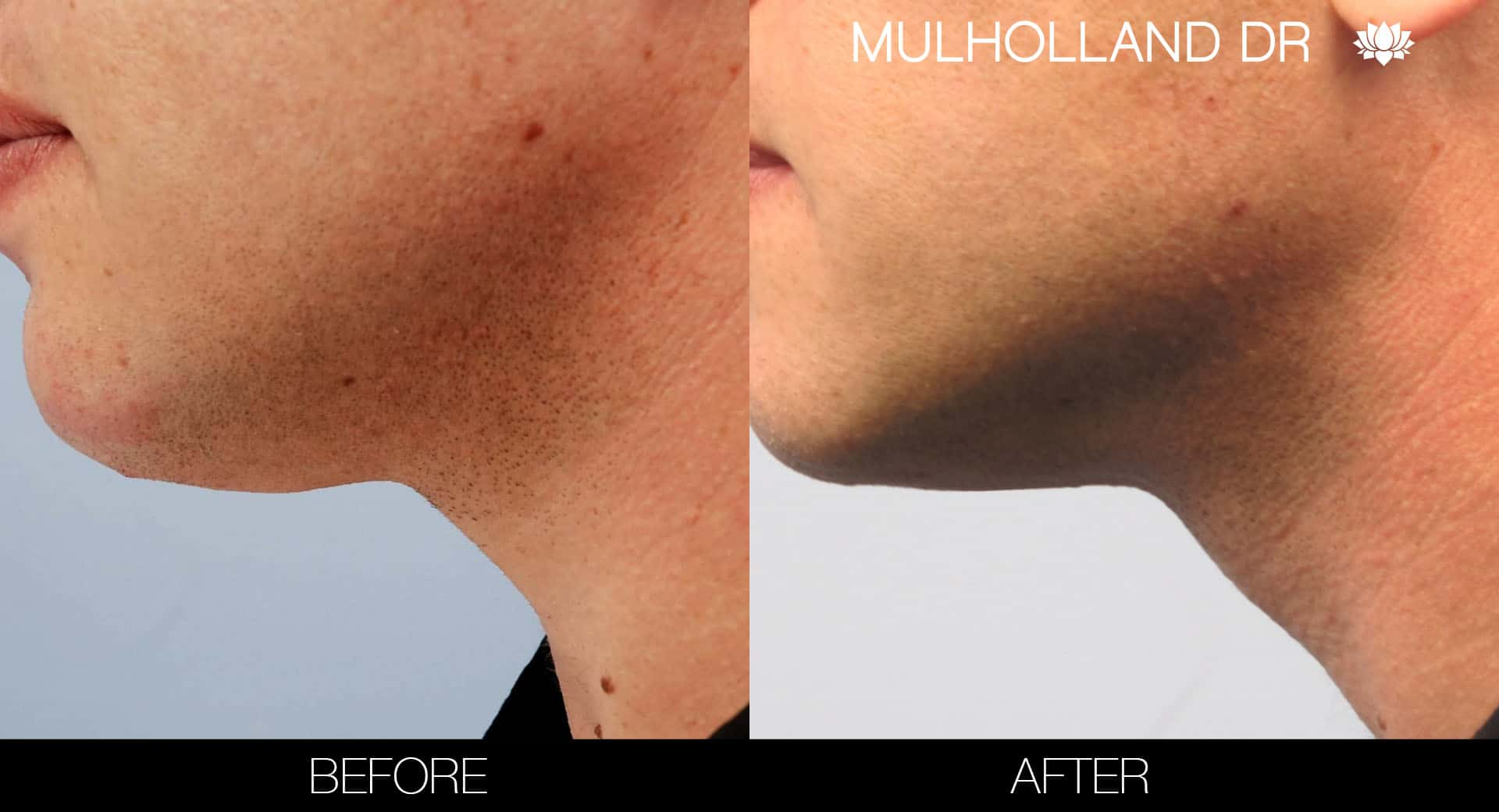 Male Double Chin - Before and After Gallery – Photo 9